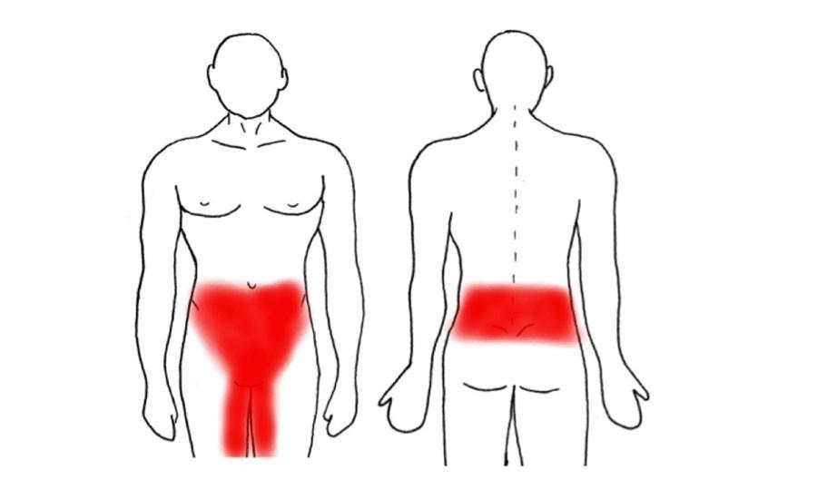 dolor riñones